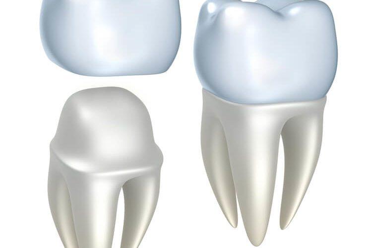 Signature Smiles-Kenyon Oyler DDS-Meridian Dentist-crowns
