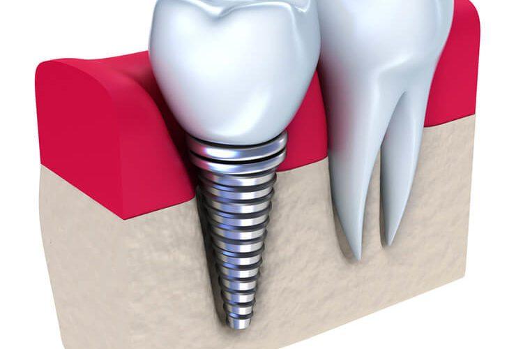 Signature Smiles-Kenyon Oyler DDS-Meridian Dentist-dental implants
