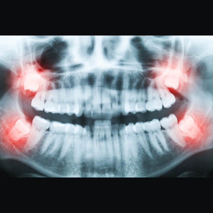 Signature Smiles-Kenyon Oyler DDS-Meridian Dentist-wisdom tooth removal